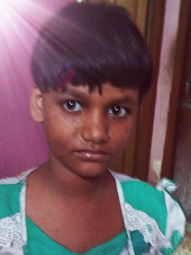 shuktara home for girls with disabilities - 2017 April - Puja after Pappu cut her hair